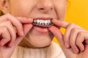 Jak często ortodonta przy aparacie?